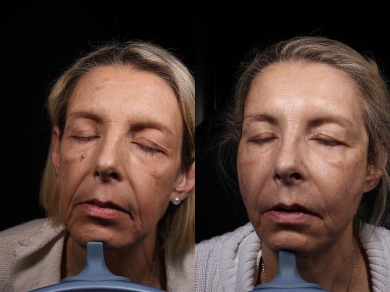 JV-BA-Jawline-Forehead-Lips-SymLyft-Botox-Versa