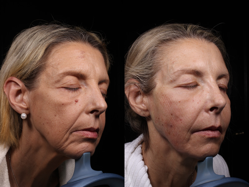 JV-BA-R-Jawline-Forehead-Lips-SymLyft-Botox-Versa